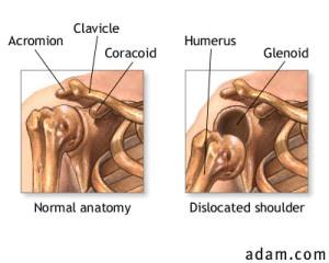 dislocatedshoulder