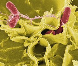 this nasty pic of Salmonella from www.righthealth.com